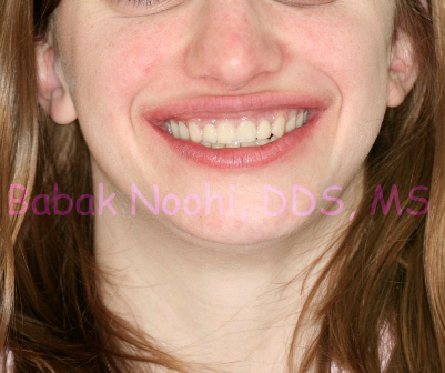 Fabrication of a set of OverDentures to restore the aesthetic and function. Patient very happy with her New Smile.