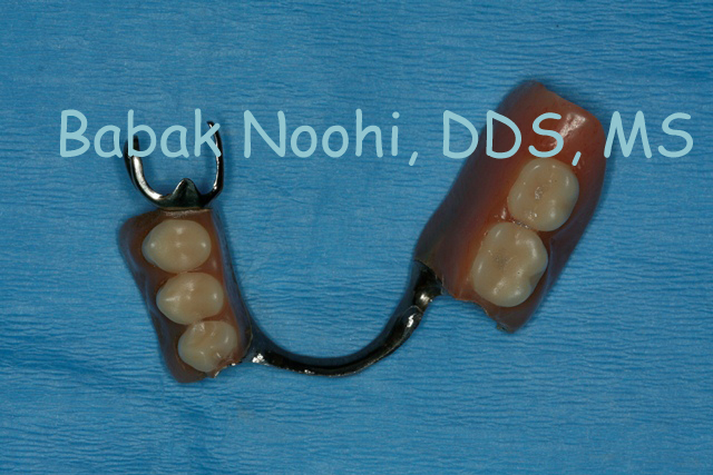 Patients Partial Denture. She is tiered of wearing it.