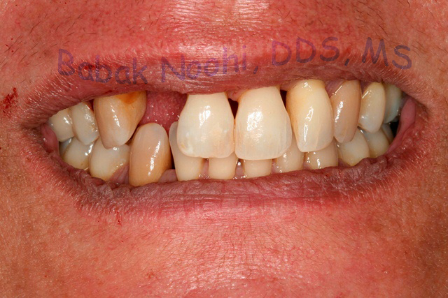 Large jaw defect after tooth loss due to periodontal disease.
