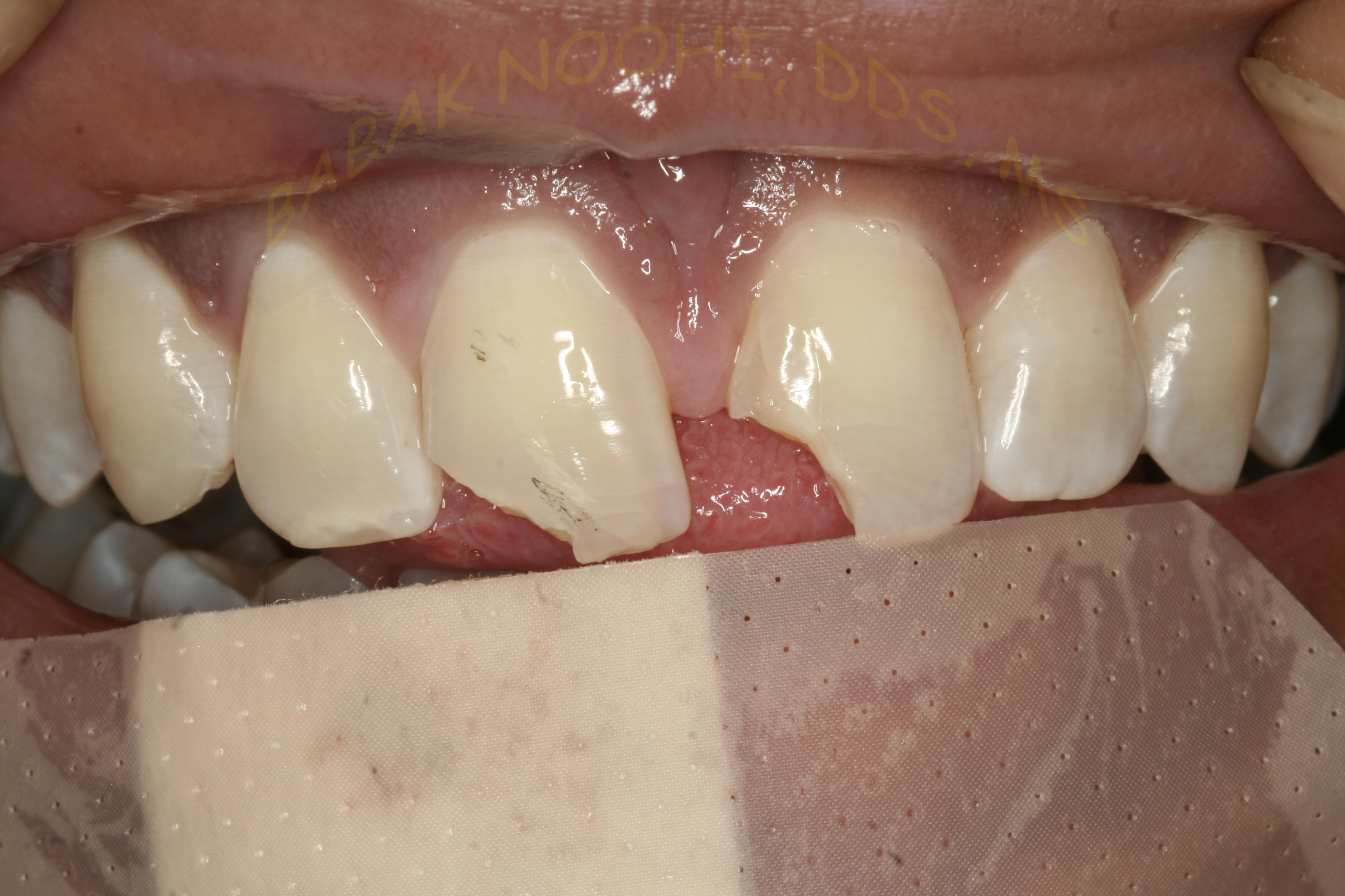 Trauma to Anterior teeth 01