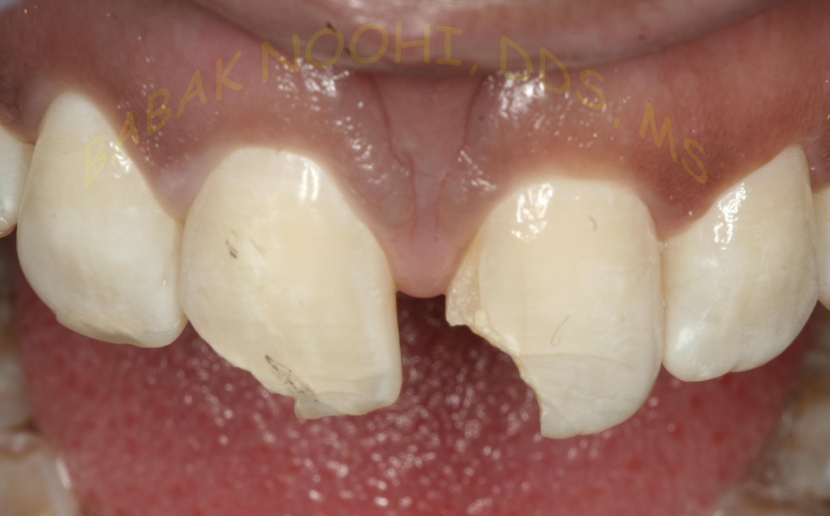Trauma to Anterior teeth 02