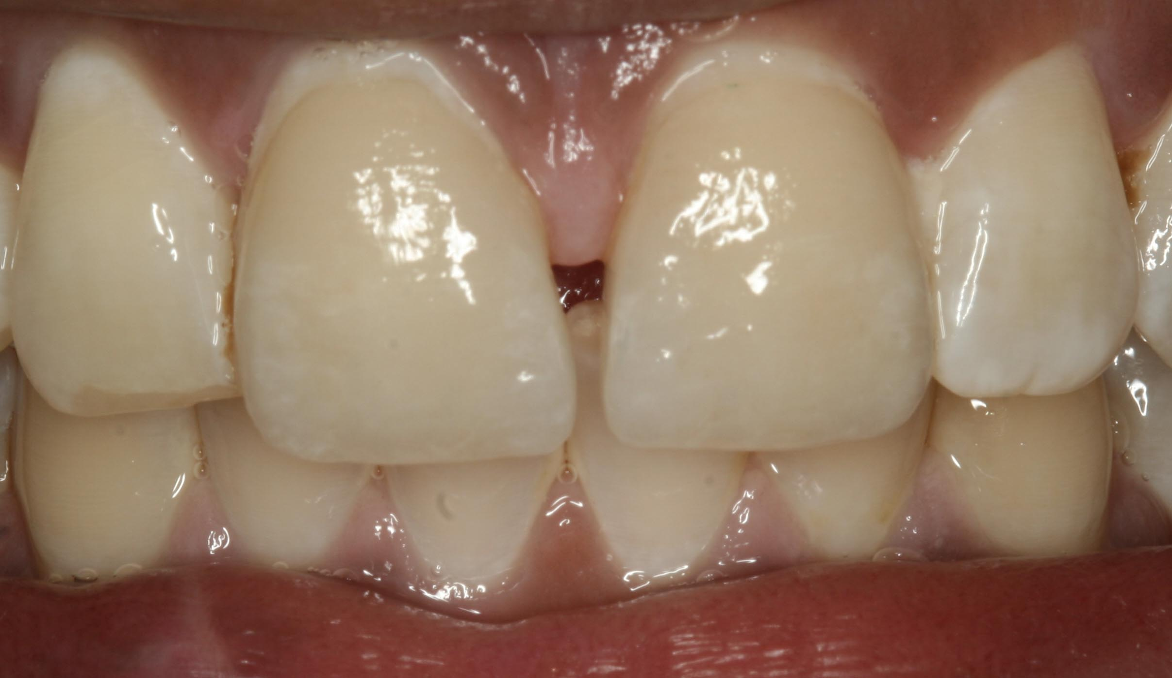 Trauma to Anterior teeth restored with Veneers 04