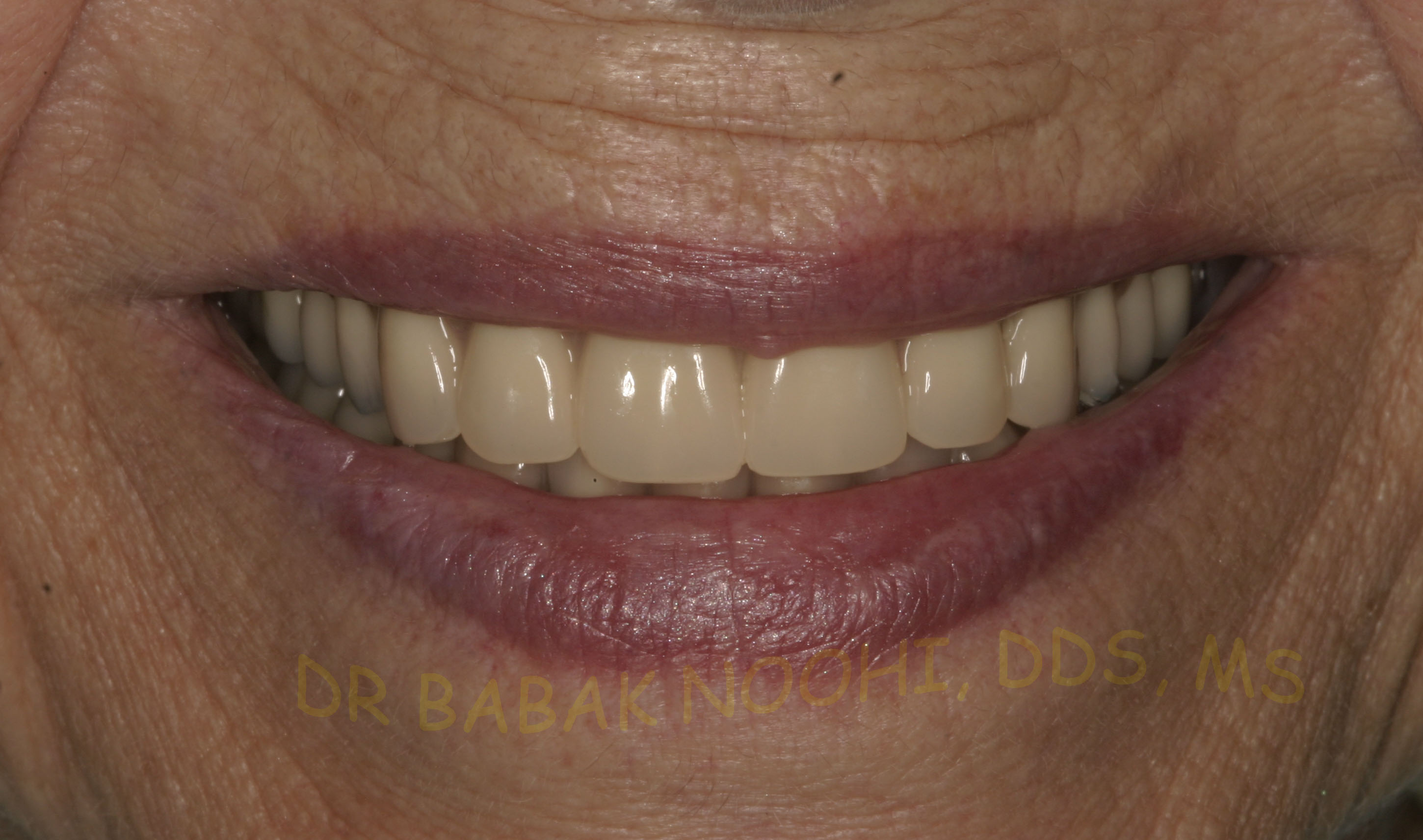 New Denture and Over-denture in place. The smile was significantly changed.