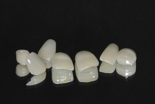 Customized Ultra Thin Porcelain Veneers
