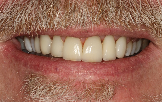 Final Delivery of Porcelain Veneers