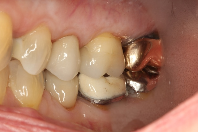 Ultra-Conservative tooth preparation #14 to receive a Porcelain Onlay. #12 composite filling was replaced, side view. Highly Esthetic outcome with an Ultra-conservative approach.