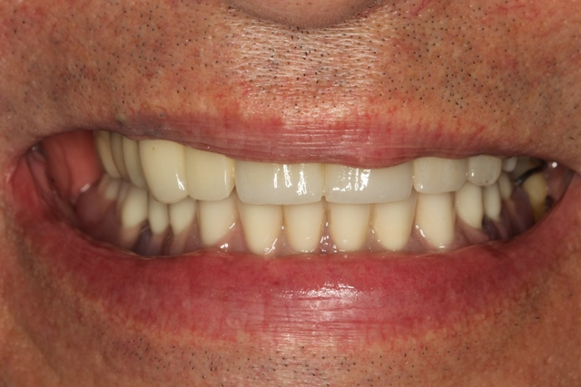 Immediate Denture was fabricated and inserted right after extraction.