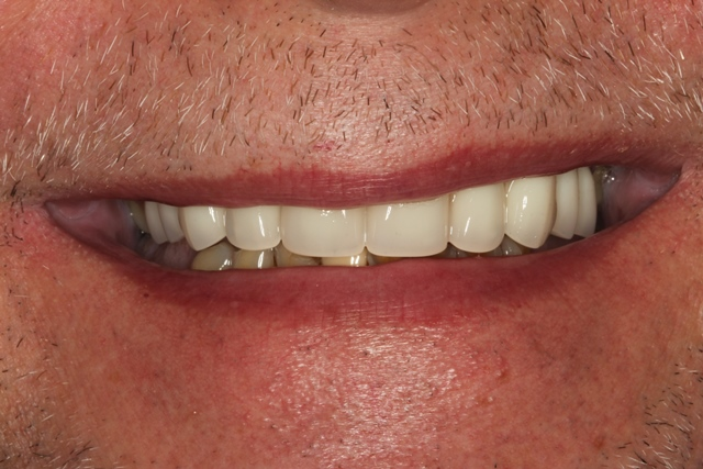 Full Denture was delivered immediately after extraction of teeth.