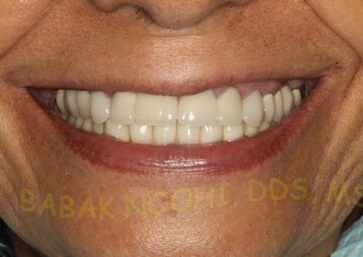 Missing lower incisors (6)