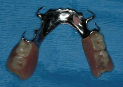 03 Patient's Partial Denture