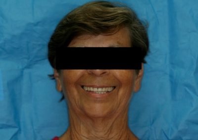 08 Complete makeover of the face, smile and patient could not be happier in this photo one year post treatment.