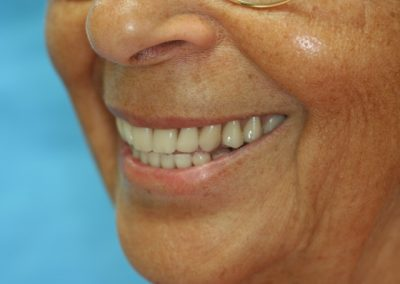 09Complete makeover of the face, smile and patient could not be happier in this photo one year post treatment.