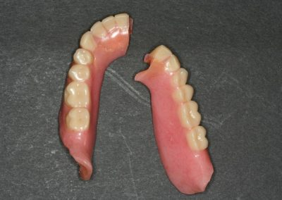 Broken full Dentures. Has it ever happend to you?