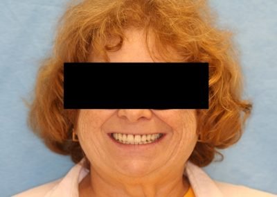 04 A new Set of full Dentures was fabricated and it shows how happy she is. She has also lost some weight.