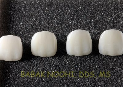 Four Porcelain Veneers for the same tooth #9