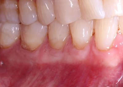 Gum Graft from patient's own palate 2 yrs follow up