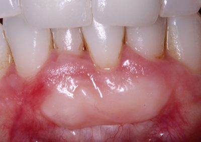 4 yr follow up shows a stable and thick gum over the defect.