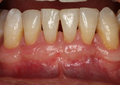 Lower incisors grafted usuing patient's own tissue, one year follow up.