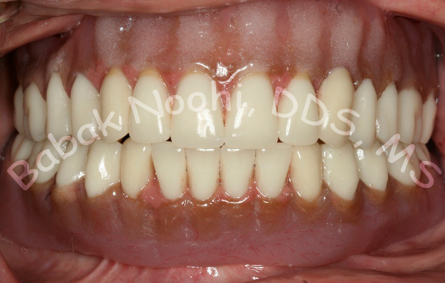 newly fabricated overdenture