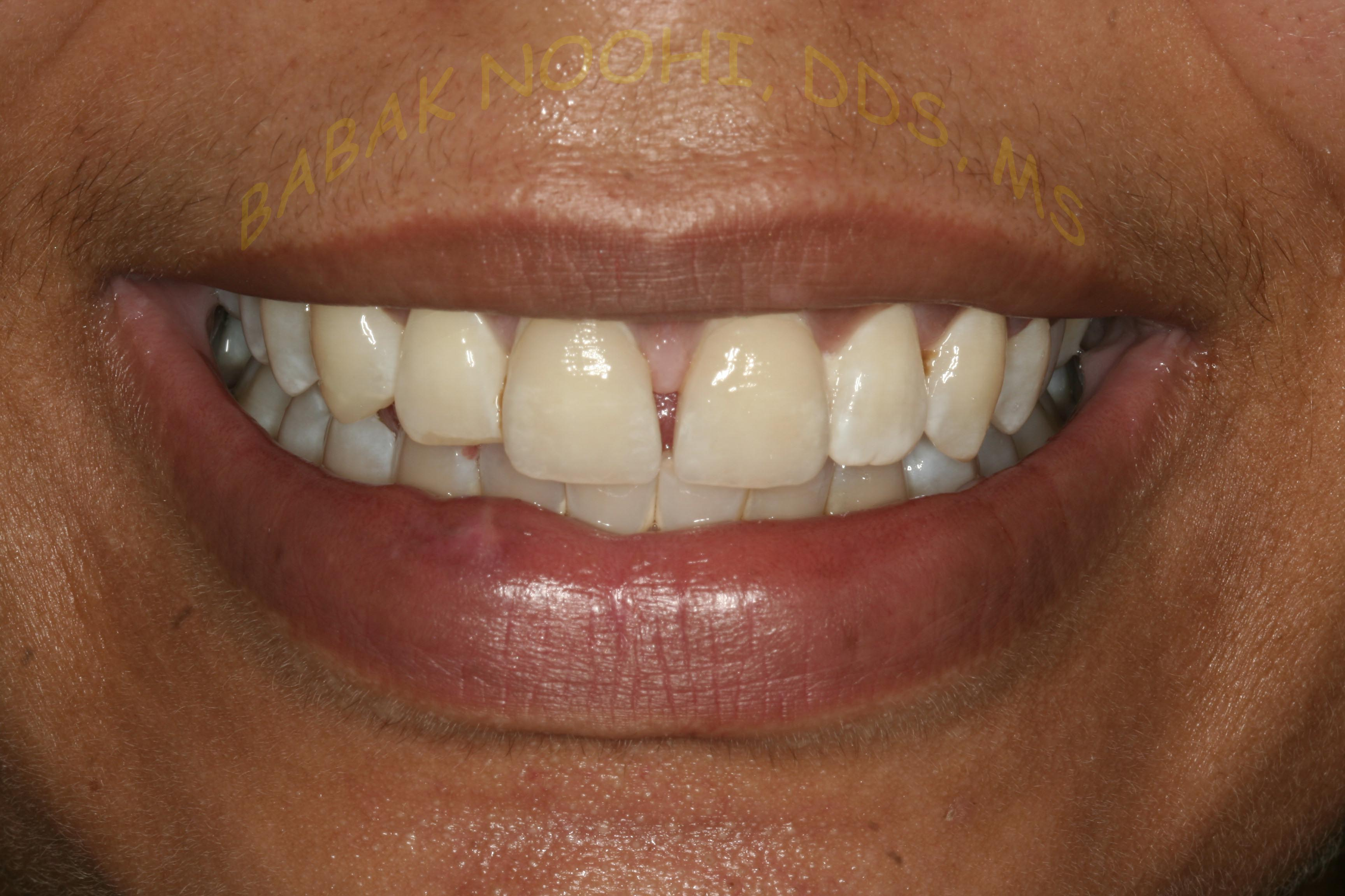 Trauma to Anterior teeth restored with Veneers 03