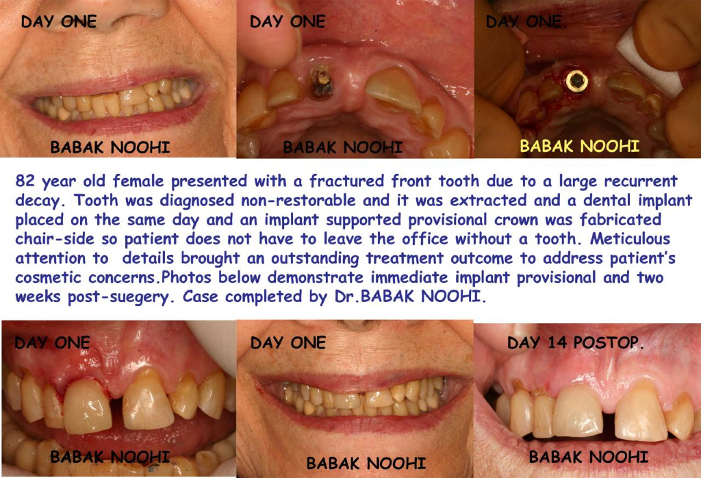 broken tooth crown or extraction