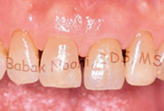 Final Implant Crown with ideal aesthetics