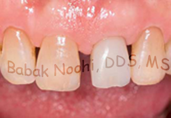 Provisional Crown attached to dental implant