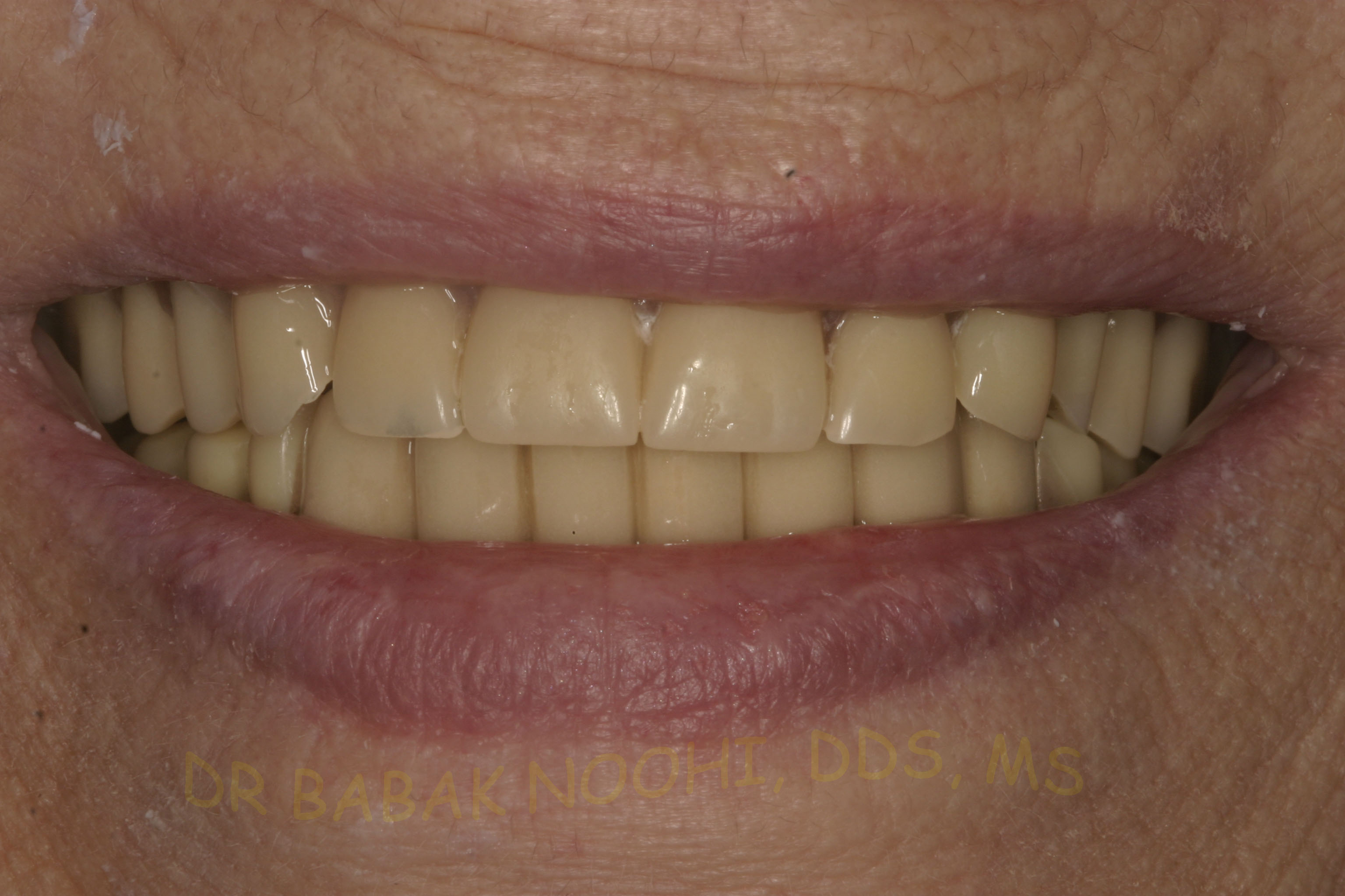 Old upper full denture and lower parital denture and a bridge