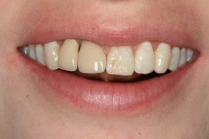 mismatching-the-shade-of-front-teeth