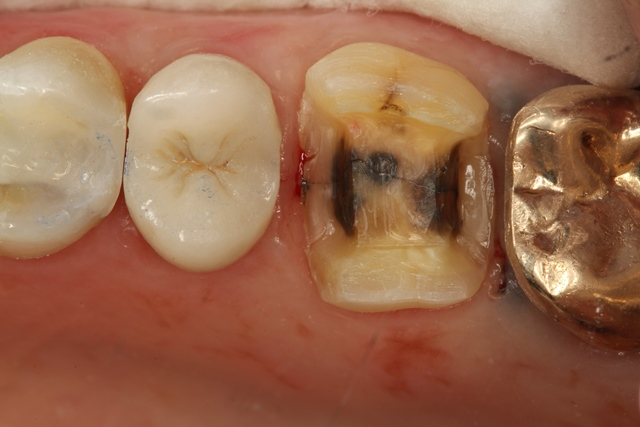 Ultra-Conservative tooth preparation #14 to receive a Porcelain Onlay. #12 composite filling was replaced