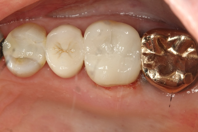 Ultra-Conservative tooth preparation #14 to receive a Porcelain Onlay. #12 composite filling was replaced, top view