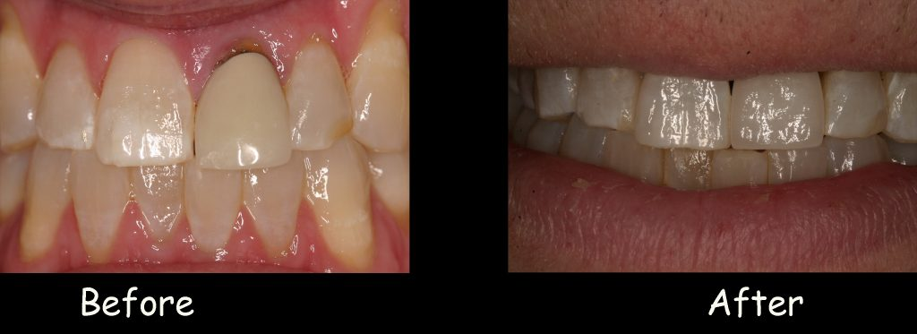 Replacing a single fractured tooth #9 with a single dental implant crown and without adding a veneer to the adjacent tooth to match the shade. Extreme attention to details was given to mimic the adjacent tooth, including shape, shade, and surface texture.