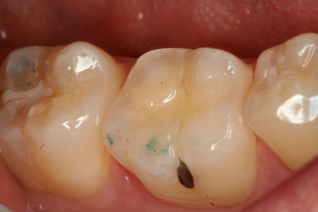 decay, tooth wear, bonding,