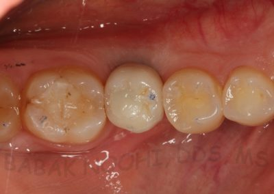Implant replacing #30 (3)
