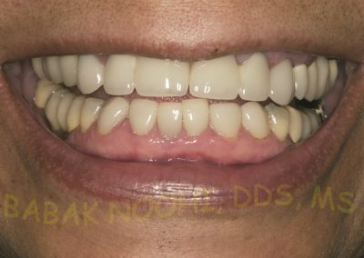 Missing lower incisors (1)