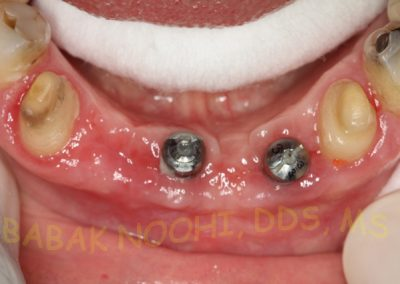 Missing lower incisors (3)