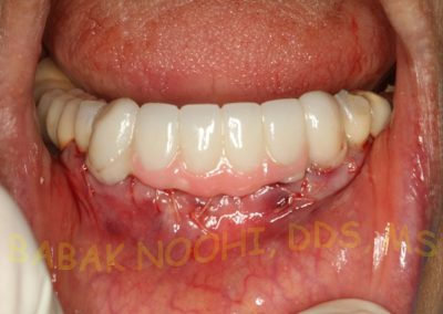 Missing lower incisors (4)